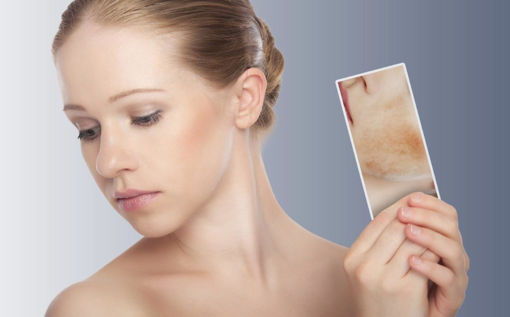 La psoriasi: oltre la dimensione dermatologica