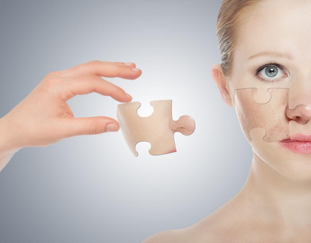Sclerodermia: oltre la dimensione organica. Implicazioni psicologiche